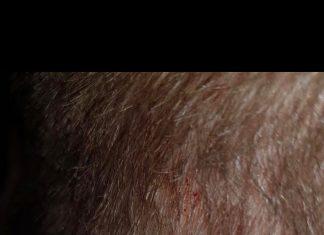 Imagen de la herida que dejó la agresión.