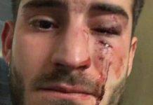 Imagen de cómo ha quedado la cara de Mario tras la agresión.